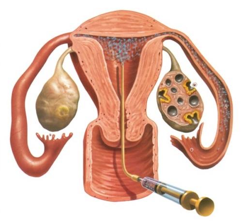 Вид спермы у женщин фото #1