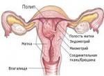 Лечение полипов эндометрия: виды и методы